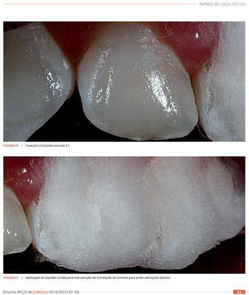 Odontologia minimamente invasiva: qual o limite